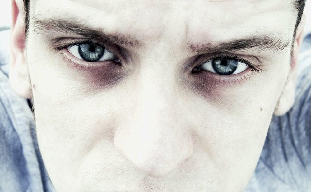 Homme avec des cernes autour des yeux